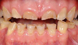 nudilę dantys, netaisyklingas sakandis ir gydymas